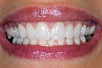 Woman smiling showing Veneers by Omaha Dentist TJ Bolamperti