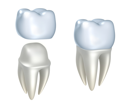 Artist conception of tooth before and after a crown was added. dental crown at Omaha's restorative dentist