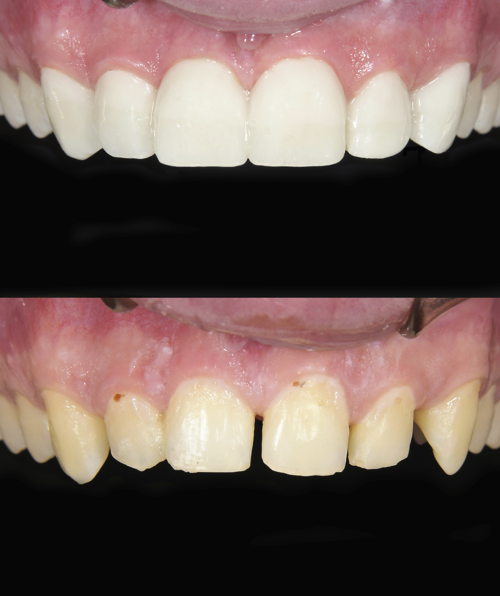 Before after photos of upper jaw showing restorative dentistry caps, crowns, dentures, implants, Omaha Dentistry